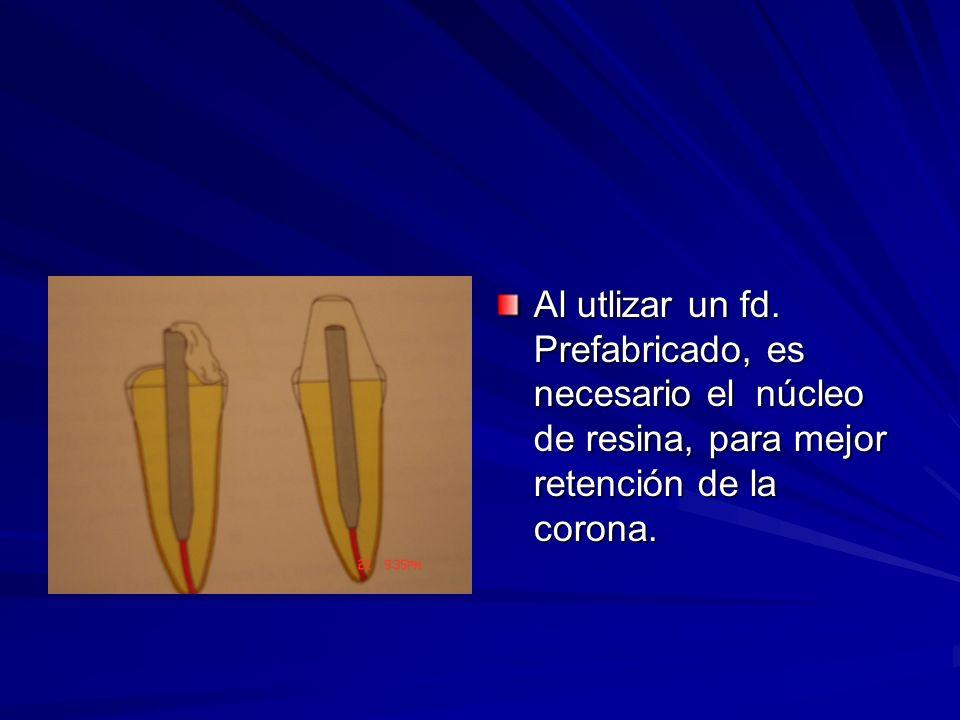 Al utlizar un fd. Prefabricado, es necesario el núcleo de resina, para mejor retención de la corona.