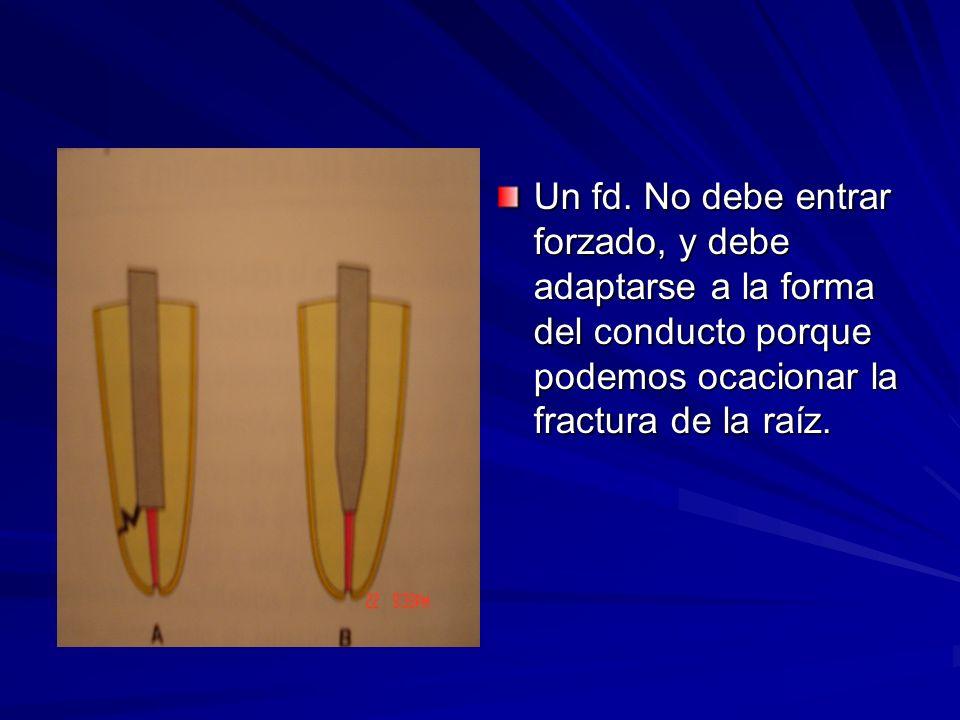 Un fd. No debe entrar forzado, y debe adaptarse a la forma del conducto porque podemos ocacionar la fractura de la raíz.