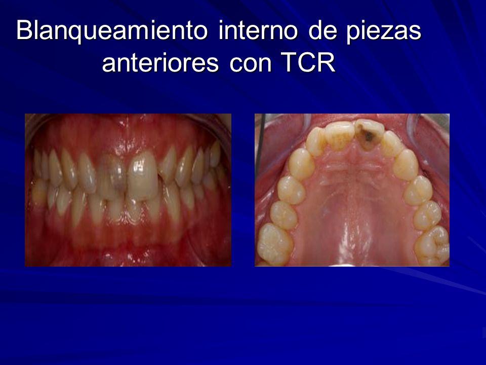 Blanqueamiento interno de piezas anteriores con TCR
