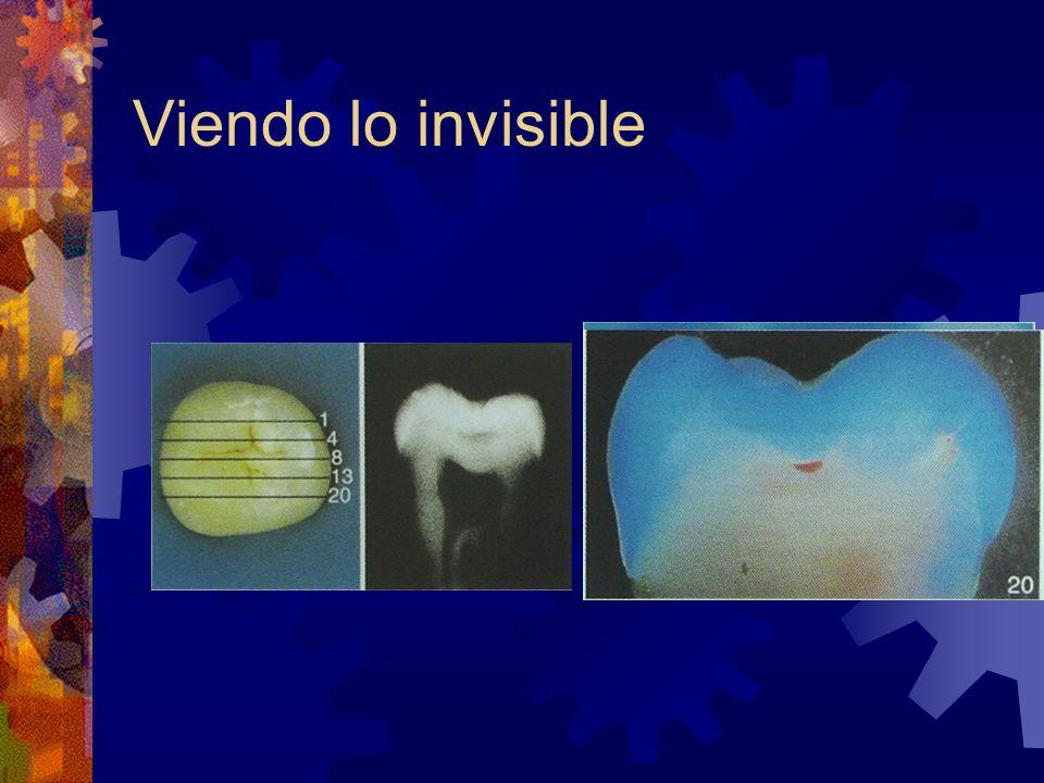 Viendo lo invisible