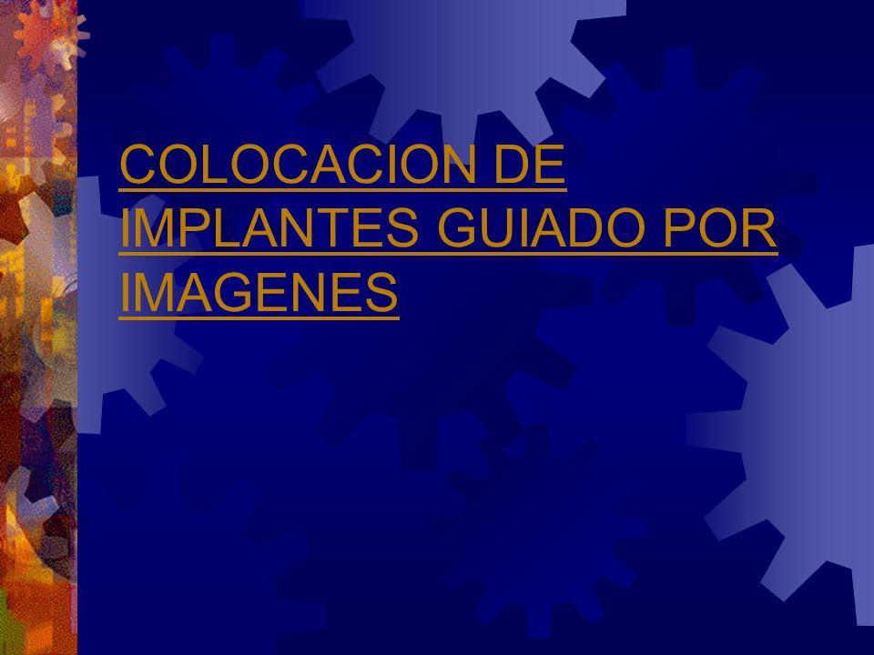 COLOCACION DE IMPLANTES GUIADO POR IMAGENES
