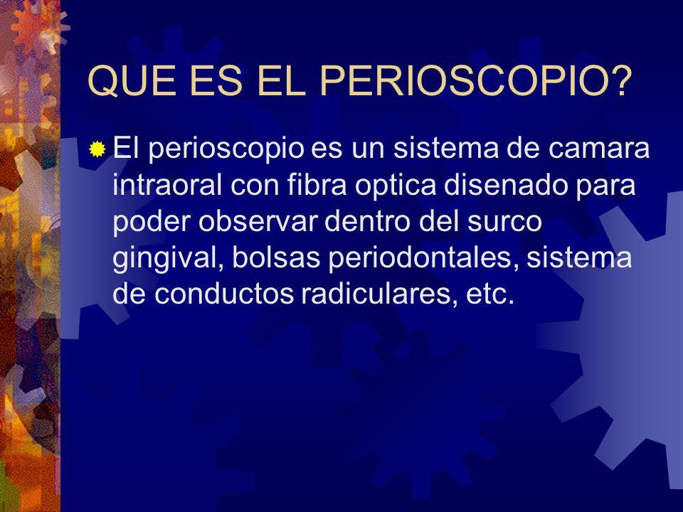 QUE ES EL PERIOSCOPIO? El perioscopio es un sistema de camara intraoral con fibra optica disenado para poder observar dentro del surco gingival, bolsa