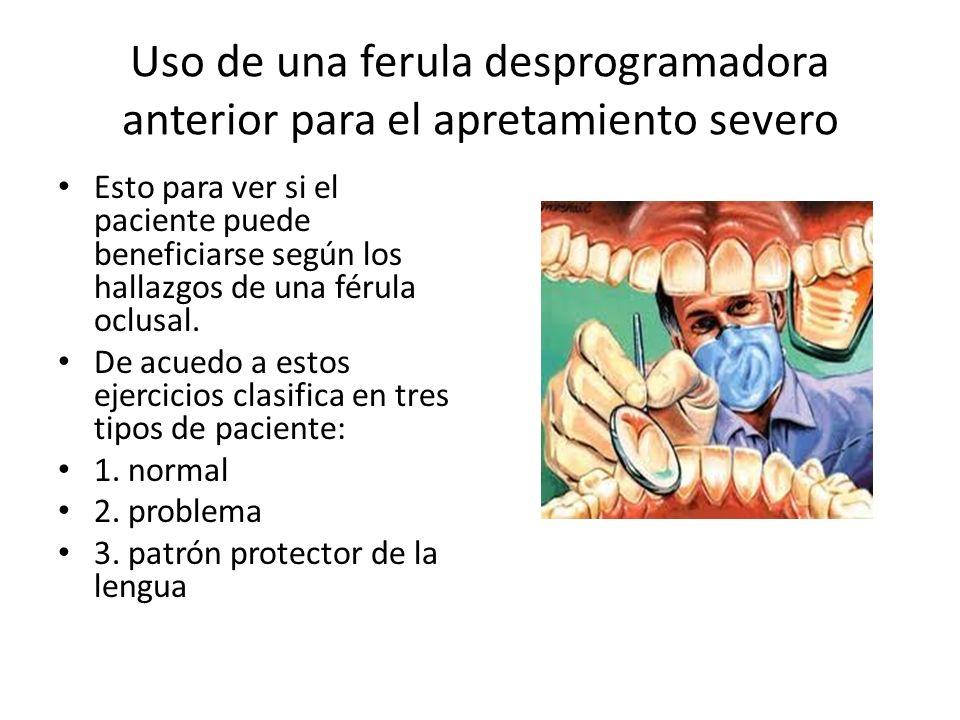 Uso de una ferula desprogramadora anterior para el apretamiento severo Esto para ver si el paciente puede beneficiarse según los hallazgos de una féru