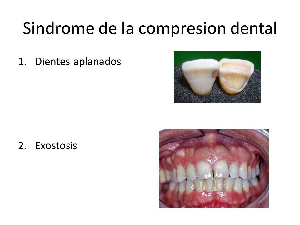 Sindrome de la compresion dental 1.Dientes aplanados 2.Exostosis