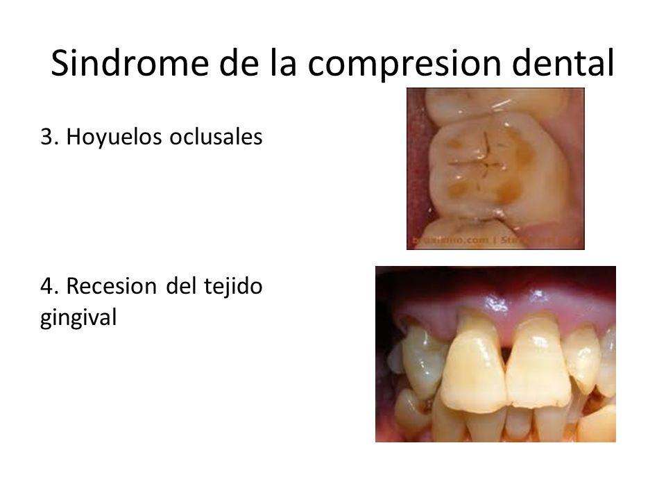 Sindrome de la compresion dental 3. Hoyuelos oclusales 4. Recesion del tejido gingival