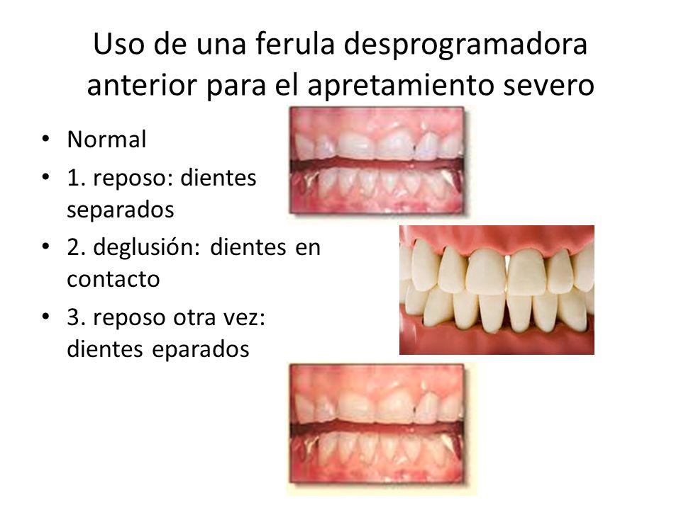 Uso de una ferula desprogramadora anterior para el apretamiento severo Normal 1. reposo: dientes separados 2. deglusión: dientes en contacto 3. reposo