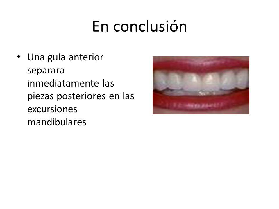En conclusión Una guía anterior separara inmediatamente las piezas posteriores en las excursiones mandibulares