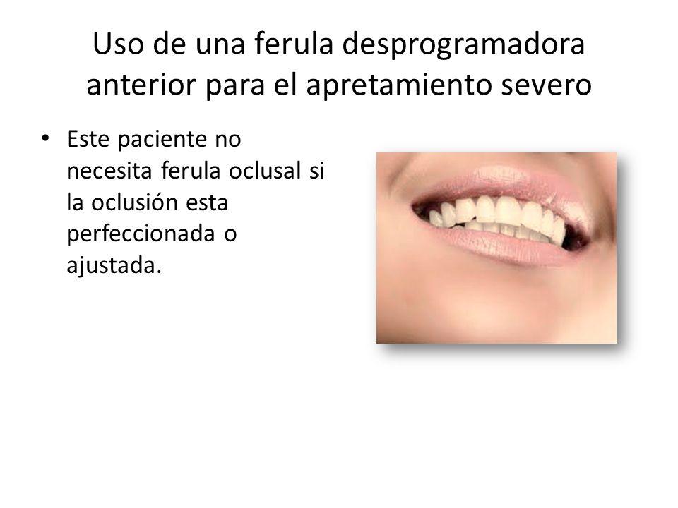 Uso de una ferula desprogramadora anterior para el apretamiento severo Este paciente no necesita ferula oclusal si la oclusión esta perfeccionada o aj