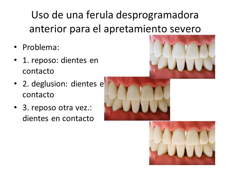 Uso de una ferula desprogramadora anterior para el apretamiento severo Problema: 1. reposo: dientes en contacto 2. deglusion: dientes en contacto 3. r