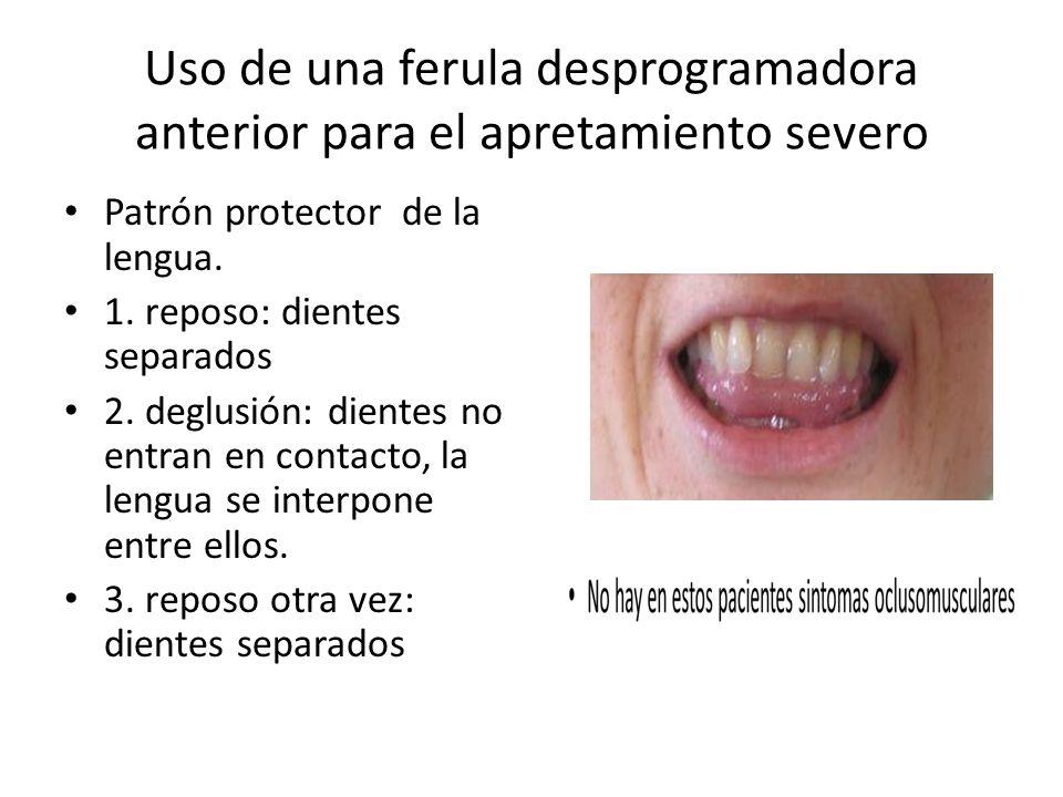 Uso de una ferula desprogramadora anterior para el apretamiento severo Patrón protector de la lengua. 1. reposo: dientes separados 2. deglusión: dient