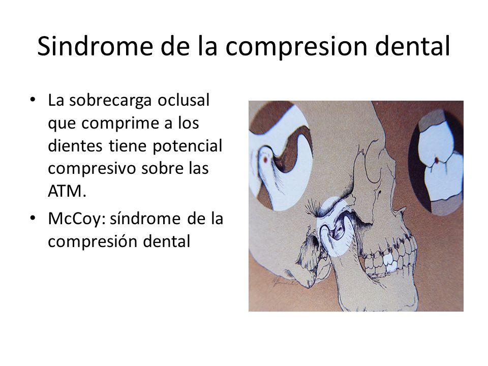 Sindrome de la compresion dental La sobrecarga oclusal que comprime a los dientes tiene potencial compresivo sobre las ATM. McCoy: síndrome de la comp