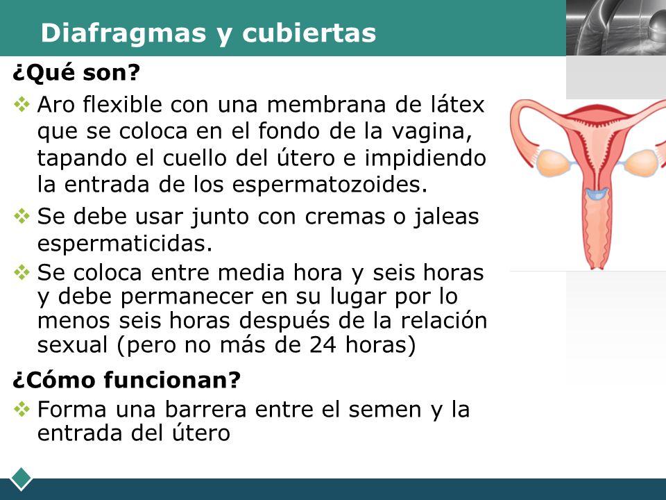 LOGO Diafragmas y cubiertas ¿Qué son? Aro flexible con una membrana de látex que se coloca en el fondo de la vagina, tapando el cuello del útero e imp
