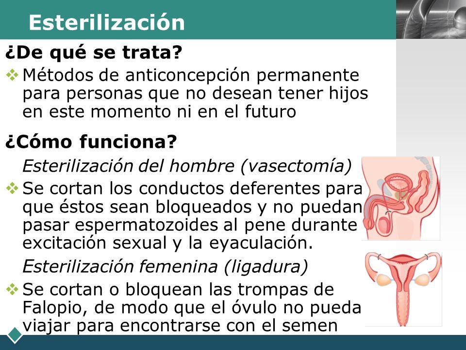 LOGO Esterilización ¿De qué se trata? Métodos de anticoncepción permanente para personas que no desean tener hijos en este momento ni en el futuro ¿Có