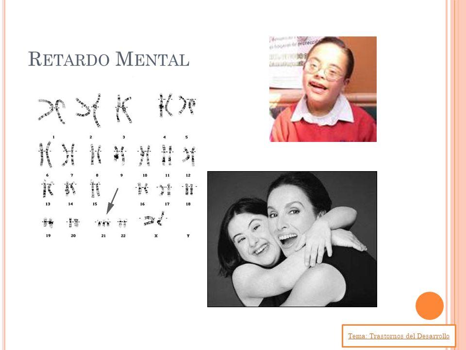 R ETARDO M ENTAL Tema: Trastornos del Desarrollo