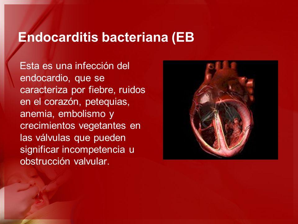 Endocarditis bacteriana (EB Esta es una infección del endocardio, que se caracteriza por fiebre, ruidos en el corazón, petequias, anemia, embolismo y