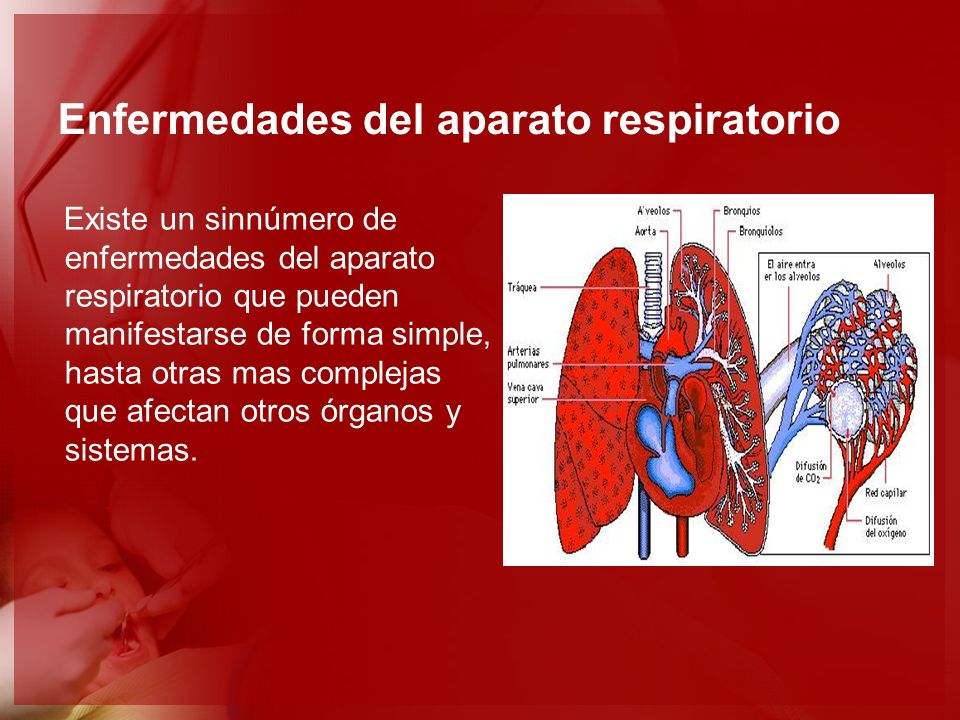 Enfermedades del aparato respiratorio Existe un sinnúmero de enfermedades del aparato respiratorio que pueden manifestarse de forma simple, hasta otra