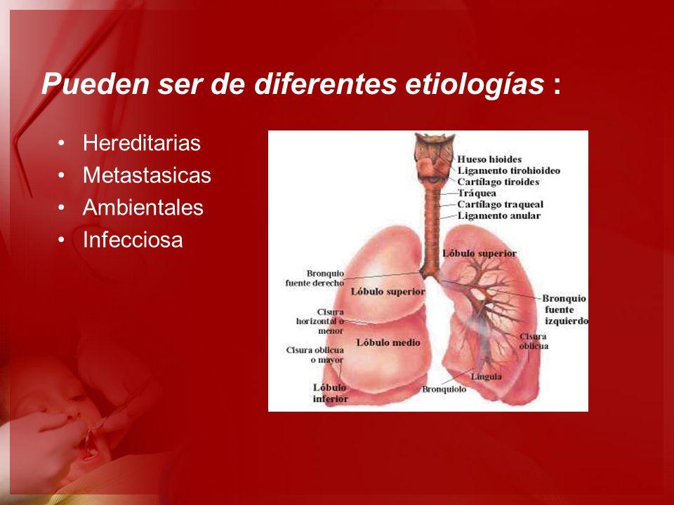 Pueden ser de diferentes etiologías : Hereditarias Metastasicas Ambientales Infecciosa