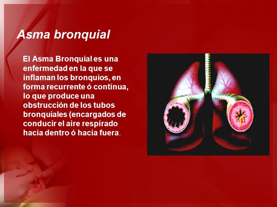 Asma bronquial El Asma Bronquial es una enfermedad en la que se inflaman los bronquios, en forma recurrente ó continua, lo que produce una obstrucción