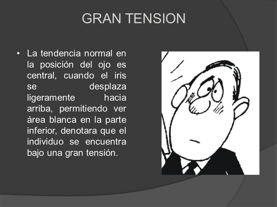 GRAN TENSION La tendencia normal en la posición del ojo es central, cuando el iris se desplaza ligeramente hacia arriba, permitiendo ver área blanca e