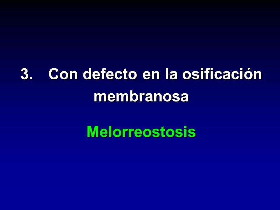 3.Con defecto en la osificación membranosa Melorreostosis 3.Con defecto en la osificación membranosa Melorreostosis