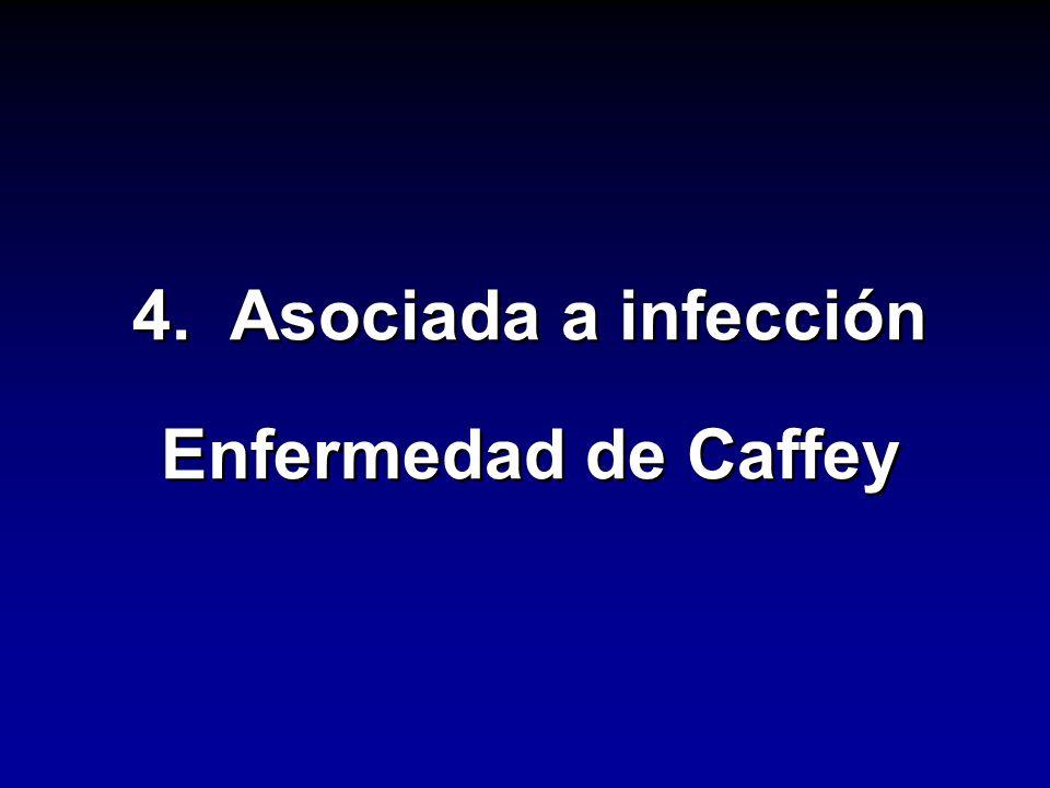 4. Asociada a infección Enfermedad de Caffey 4. Asociada a infección Enfermedad de Caffey