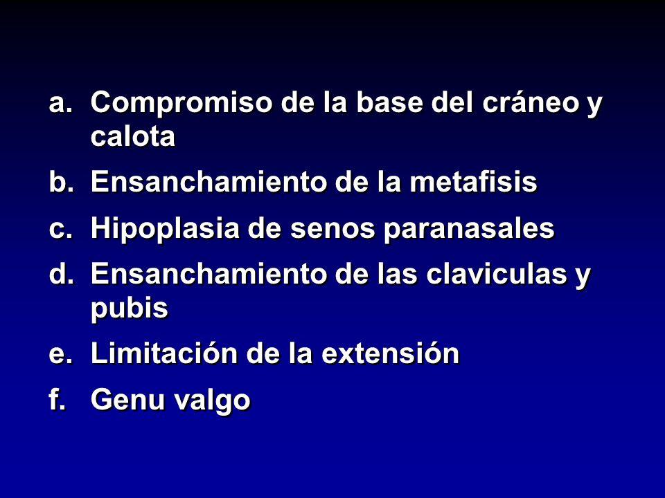 a.Compromiso de la base del cráneo y calota b.Ensanchamiento de la metafisis c.Hipoplasia de senos paranasales d.Ensanchamiento de las claviculas y pu