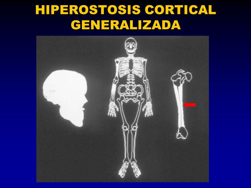 HIPEROSTOSIS CORTICAL GENERALIZADA