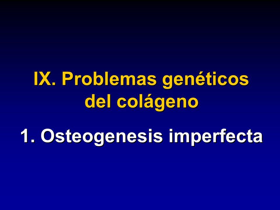 IX. Problemas genéticos del colágeno 1. Osteogenesis imperfecta IX. Problemas genéticos del colágeno 1. Osteogenesis imperfecta