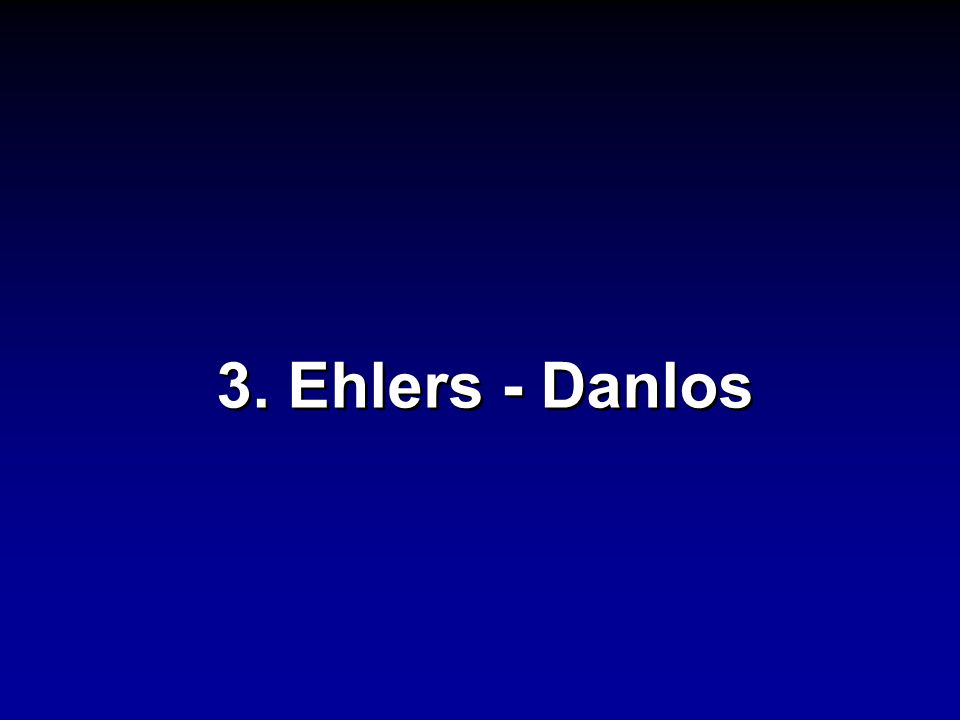 3. Ehlers - Danlos