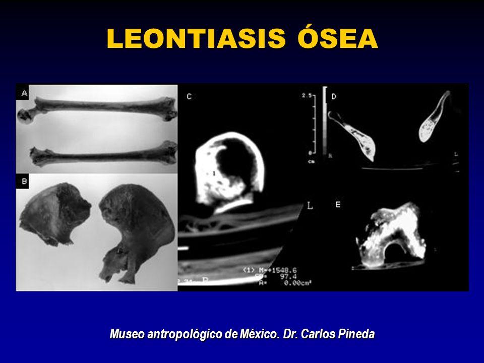 LEONTIASIS ÓSEA Museo antropológico de México. Dr. Carlos Pineda