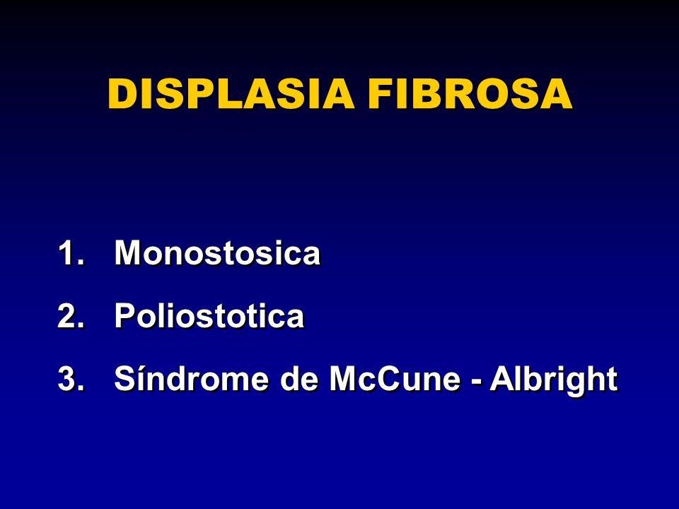 1.Monostosica 2.Poliostotica 3.Síndrome de McCune - Albright 1.Monostosica 2.Poliostotica 3.Síndrome de McCune - Albright DISPLASIA FIBROSA