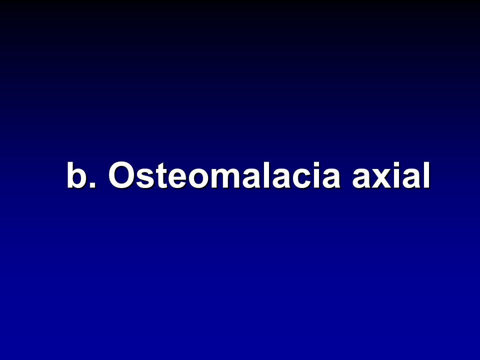 b. Osteomalacia axial