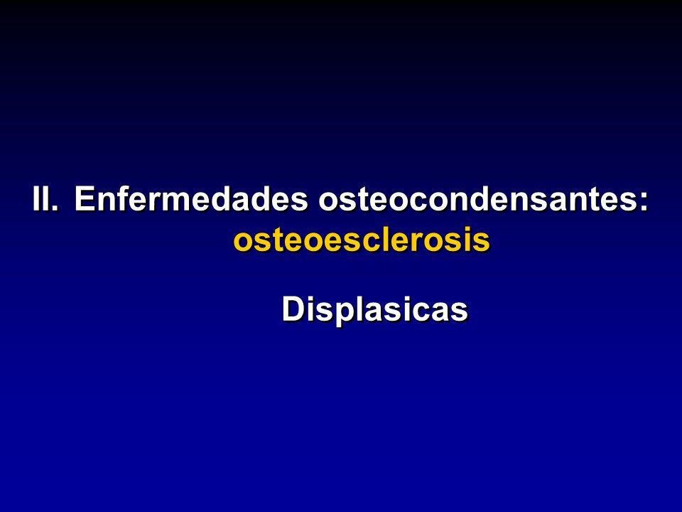II.Enfermedades osteocondensantes: osteoesclerosis Displasicas II.Enfermedades osteocondensantes: osteoesclerosis Displasicas