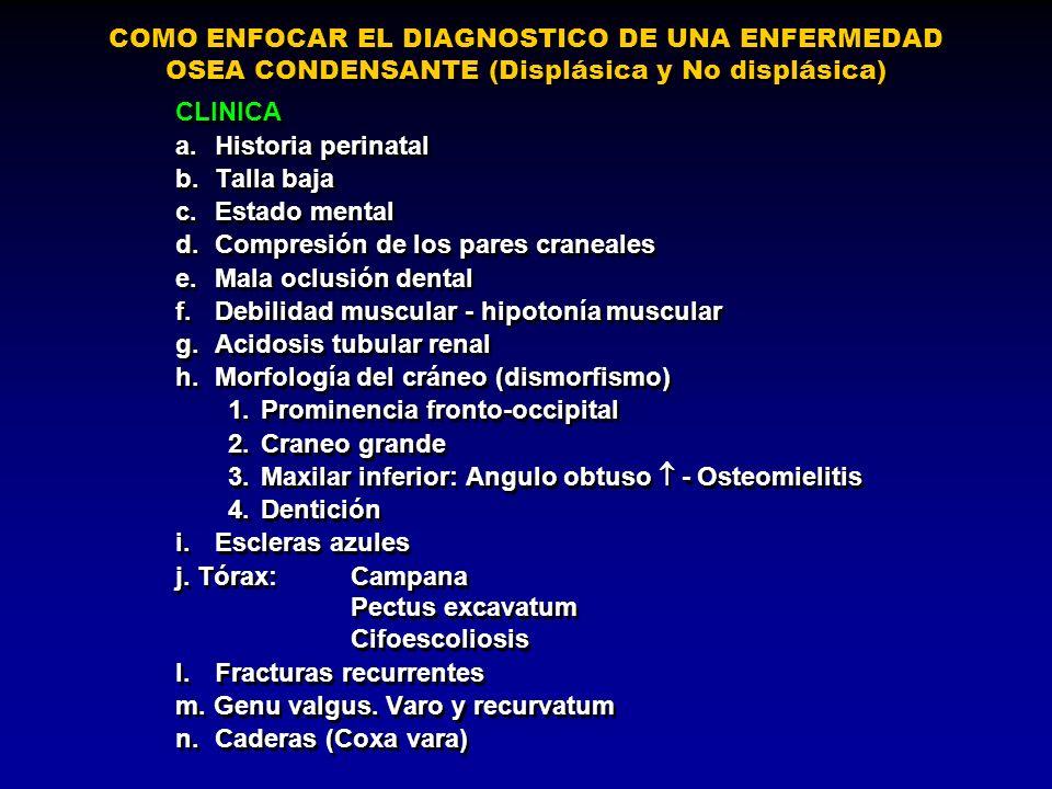 COMO ENFOCAR EL DIAGNOSTICO DE UNA ENFERMEDAD OSEA CONDENSANTE (Displásica y No displásica) CLINICA a.Historia perinatal b.Talla baja c.Estado mental