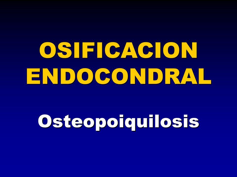 Osteopoiquilosis OSIFICACION ENDOCONDRAL
