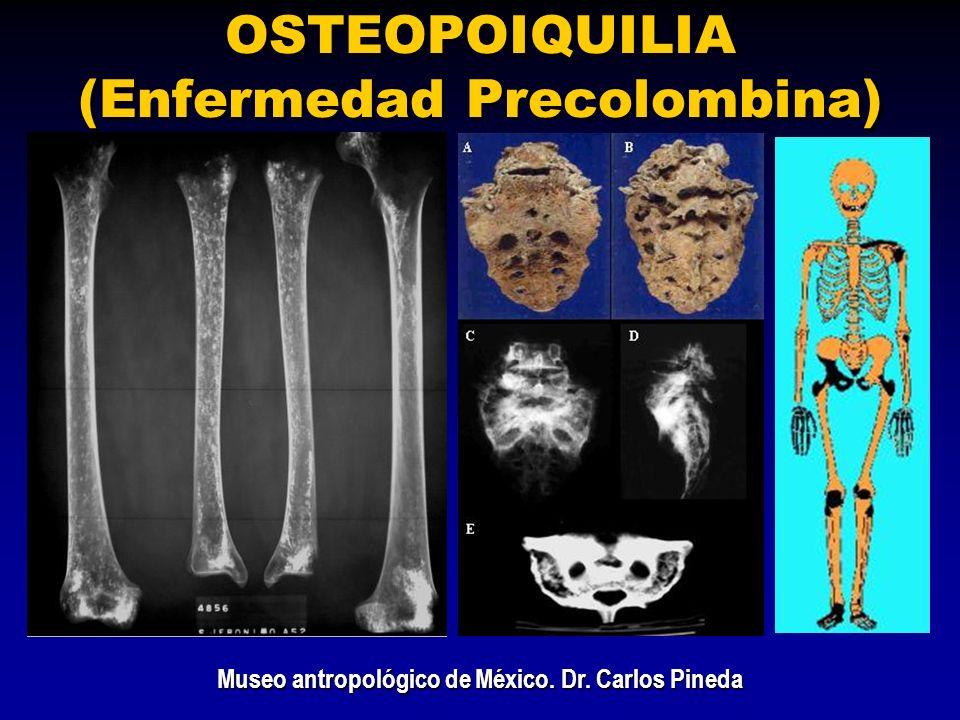 OSTEOPOIQUILIA (Enfermedad Precolombina) Museo antropológico de México. Dr. Carlos Pineda