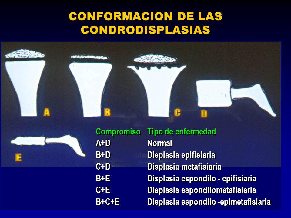 CONFORMACION DE LAS CONDRODISPLASIAS CompromisoTipo de enfermedad A+DNormal B+DDisplasia epifisiaria C+DDisplasia metafisiaria B+EDisplasia espondilo