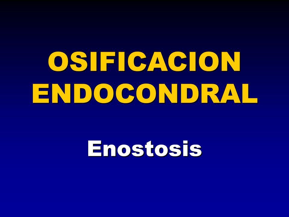 Enostosis OSIFICACION ENDOCONDRAL