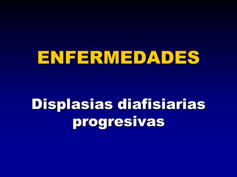 ENFERMEDADES Displasias diafisiarias progresivas