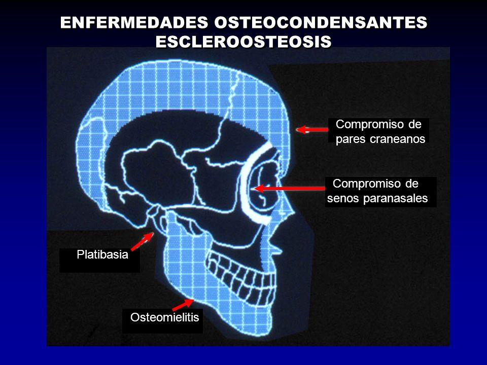 ENFERMEDADES OSTEOCONDENSANTES ESCLEROOSTEOSIS Compromiso de pares craneanos Compromiso de senos paranasales Osteomielitis Platibasia