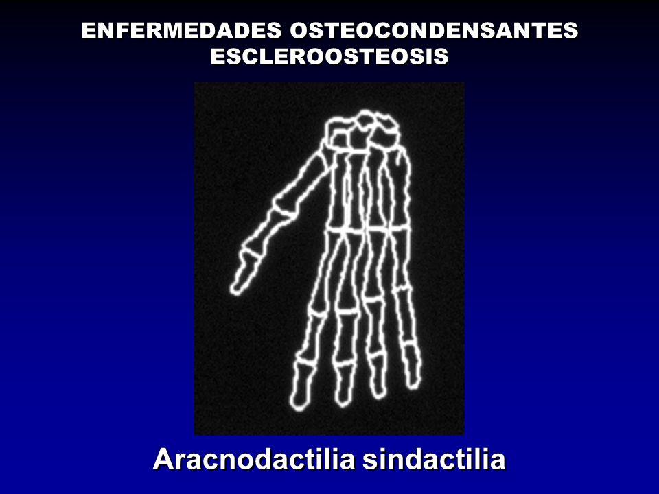 Aracnodactilia sindactilia ENFERMEDADES OSTEOCONDENSANTES ESCLEROOSTEOSIS