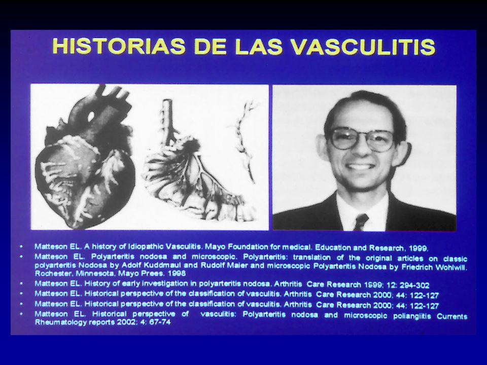 Historias de las vasculitis Historia de la enfermedad de Beh et Adamantiadis H. Behcet