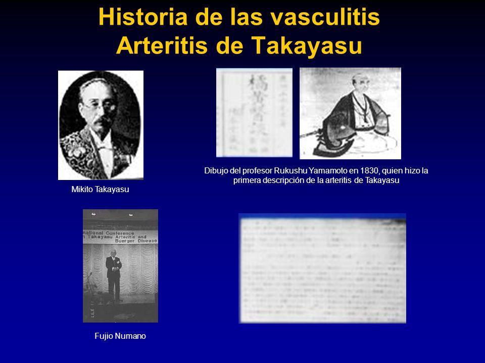 Historia de las vasculitis Arteritis de Takayasu Mikito Takayasu Fujio Numano Dibujo del profesor Rukushu Yamamoto en 1830, quien hizo la primera desc