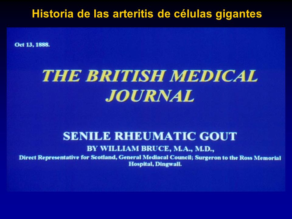 Historia de las arteritis de células gigantes