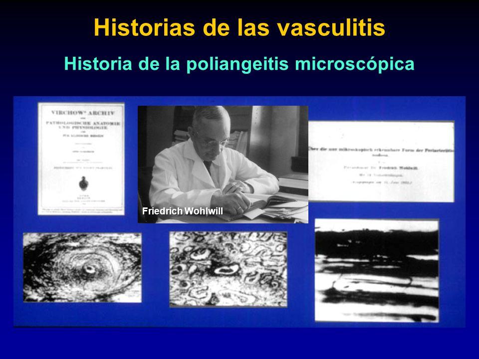 Friedrich Wohlwill Historias de las vasculitis Historia de la poliangeitis microscópica