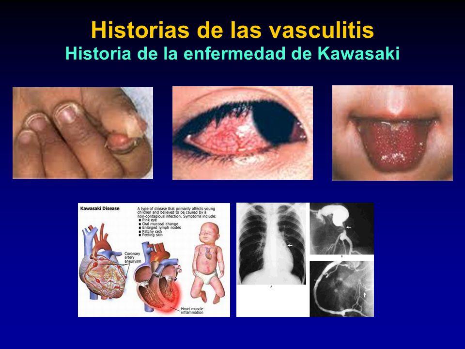 Historias de las vasculitis Historia de la enfermedad de Kawasaki
