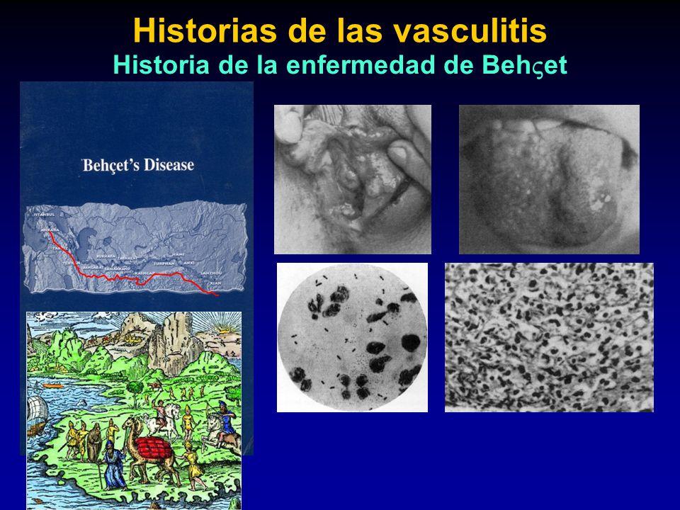 Historias de las vasculitis Historia de la enfermedad de Beh et