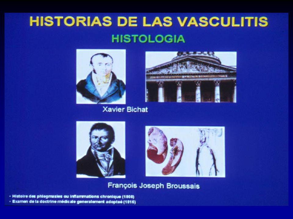 Lotte Strauss Jacob Churg Historias de las vasculitis Sindrome de Churg-Strauss