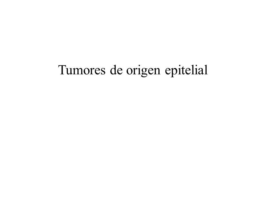Tumores de origen epitelial