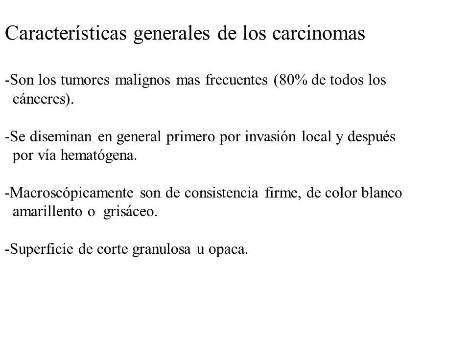 Características generales de los carcinomas -Son los tumores malignos mas frecuentes (80% de todos los cánceres). -Se diseminan en general primero por